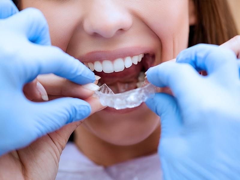 Ortodonzia_Dentalcoop-Brunico